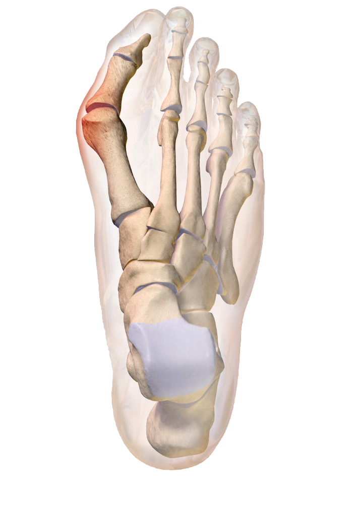 Dr. Fosdick can treat your bunions